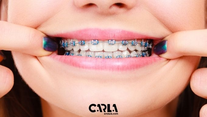How Long Does It Take To Become An Orthodontist